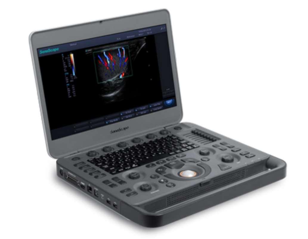 SonoScape X3 ultralydsscanner